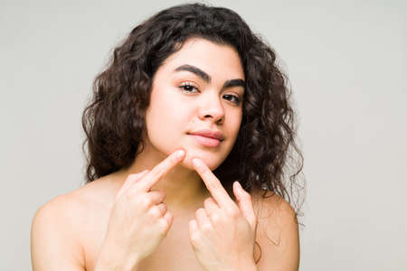 Pretty woman in her 20s trying to remove a pimple from her chin. Young woman is seeing an acne mark on her face