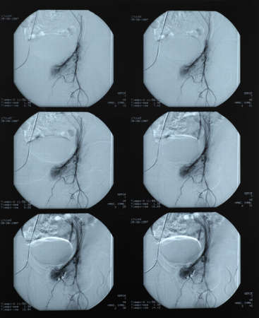endovascular: Vascular radiography of a blood leakage being operated