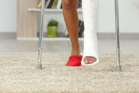 Front view close up of a disabled woman legs with plaster foot walking at home Banco de Imagens