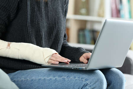 Close up portrait of a disabled woman hands with bandaged arm writing on laptop at home