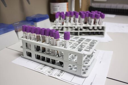 Milan, Italy - March 17, 2020: Sorting of blood tubes in a rack in the analysis laboratory