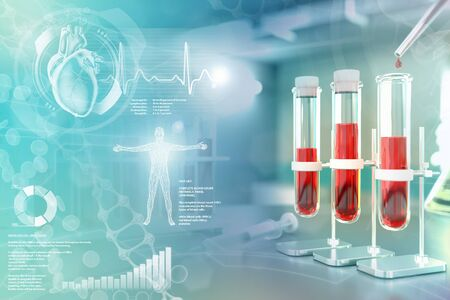 Medical 3D illustration, proofs vials in college office - blood sample analysis for protein or aids with creative overlay Banco de Imagens