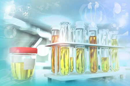 Urine sample test for casts or urinary tract infection - proofs in modern medical university clinic, medical 3D illustration Stock fotó