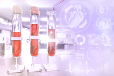 Medical 3D illustration, test tubes vials in study office - blood sample test for red cell distribution or aids with creative gradient overlay