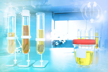 Urine sample test for covid-2019 or hypertension - test-tubes in modern pollution research office, medical 3D illustration