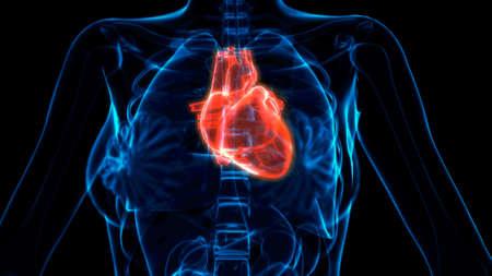 cg medical 3d illustration, human heart illness xray image Banque d'images
