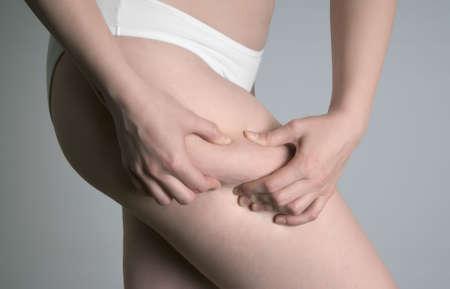 muslos: Cerca de la pierna de una mujer joven que muestra su celulitis