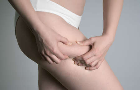 Close up on the leg of a young woman showing her cellulite Stock Photo