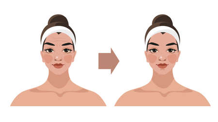Before and after, illustrations for a beauty salon, cosmetic procedures, plastic surgery, facial massage, lymphatic drainage techniques. Female portrait with age-related changes. Vector isolated on white background Illusztráció