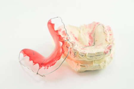 Dental brace and retainer on white background. photo