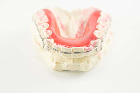 Abrazadera dental y el ret�n en el fondo blanco. photo