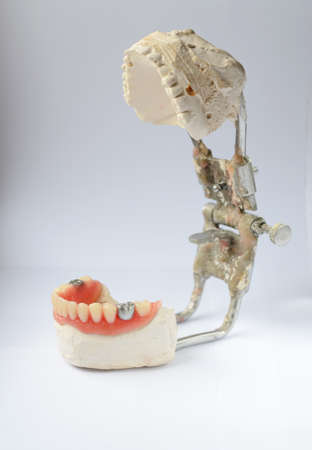 Artificial tooth, dental prosthesis with false silver tooth, metalic crown on tooth. Denture