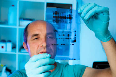 Senior scientist analyses Western blot results, shallow DOF, focus on the gel photo