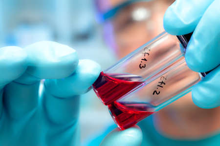 Ciekłe próbki biologiczne w jednorazowych plastikowych rur Zdjęcie Seryjne