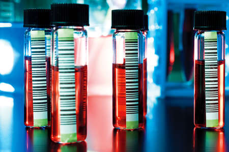 medical sample: Barcoded medical samples in transparent tubes Stock Photo