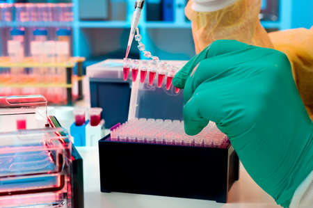 eppendorf: Scientist loads PCR samples for DNA analysis