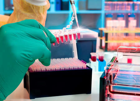 loads: Scientist loads PCR samples for DNA analysis