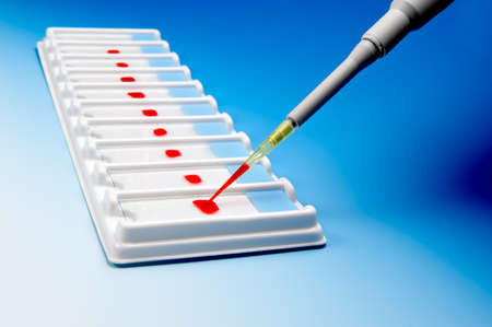 microscopy: Array of blood samples for microscopy and a pipette on blue gradient background Stock Photo
