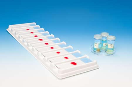 biopsia: Array de muestras de sangre para microscop�a y biopsia de tejido sobre fondo azul degradado Foto de archivo