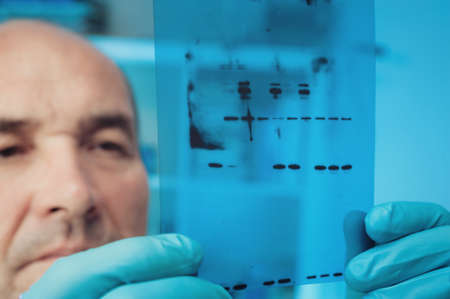 Scientist checks results of Western Blot experiment Stock Photo