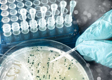 Bacterial colonies for cloning of transgenic into plasmid DNA Stock Photo - 21946972