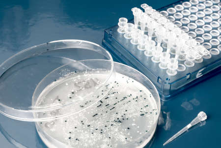 Bacterial colonies for cloning of transgenic into plasmid DNA Stock Photo - 21946978