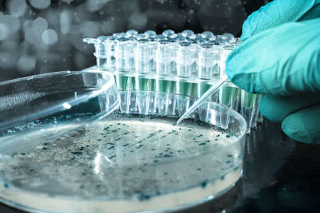 Scientist picks up bacterial colonies for cloning of transgenic into plasmid DNA Stock Photo - 21946979