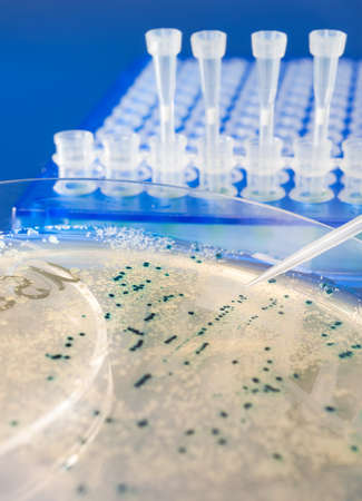 Bacterial colonies for cloning of transgenic vector into plasmid DNA Stock Photo - 21946994