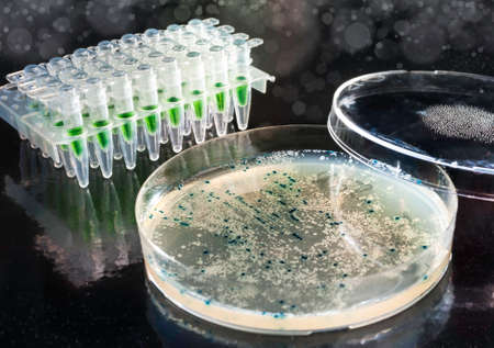 Bacterial colonies for cloning of transgenic vector into plasmid DNA  Stock Photo - 22957893