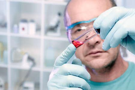 Liquid biological sample in disposable plastic tube  Stock Photo - 22670503