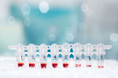 pcr: Tubes for DNA amplification by PCR on ice Stock Photo