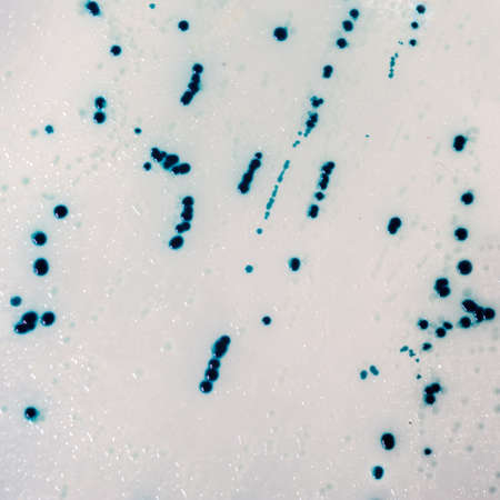 amplification: Agar surface with bacterial colonies for plasmid