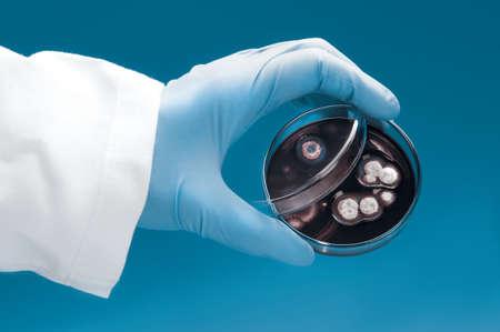 bata blanca: Cient�fico en bata blanca y guantes de color azul tiene placa de Petri con colonias de hongos sobre fondo azul Foto de archivo