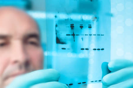 Scientific background. Scientist checks sizes of recominant proteins on Western Blot. Shallow DOF,  focus on the gel photo
