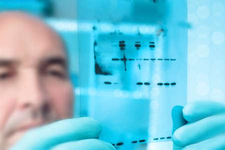 Wetenschappelijke achtergrond. Wetenschapper controleert maten recominant eiwitten op Western Blot. Ondiepe DOF, focus op de gel Stockfoto