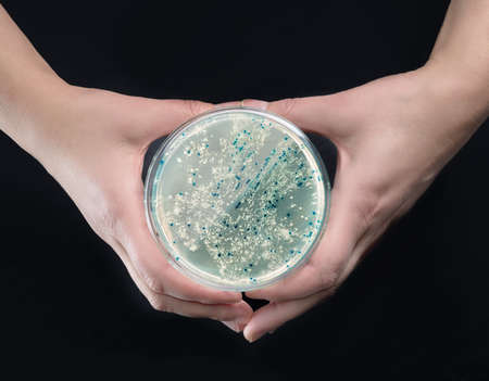 cloning: Hands holding agar plate with bacterial colonies for plasmid vector cloning