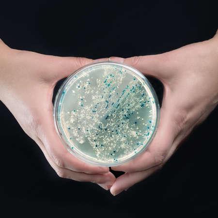clonacion: Manos que sostienen la placa de agar con colonias de bacterias para la clonaci�n pl�smido vector