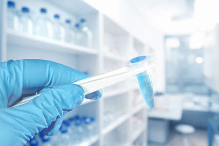 Hand in protective glove holds blue liquid sample, blurred laboratory on the background, focus on the hand, text space 스톡 콘텐츠