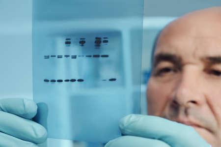 Senior scientist or tech checks results of protein blot analysis on X-ray film photo