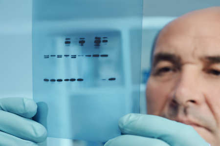 radiographic: Senior scientist or tech checks results of protein blot analysis on X-ray film Stock Photo