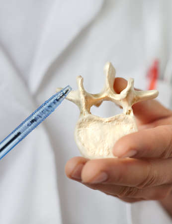 Closeup on a model of human vertebra in hand of a heath practitioner pointing at it.