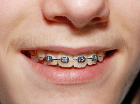 Close-up of a smiling young teenager with braces Stock Photo - 3790873