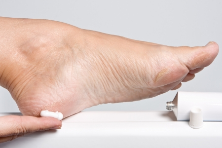 foot cream: Female hands treating dry feet with moisturizing cream