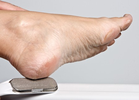 exfoliation: Hand removing callous from a dry foot