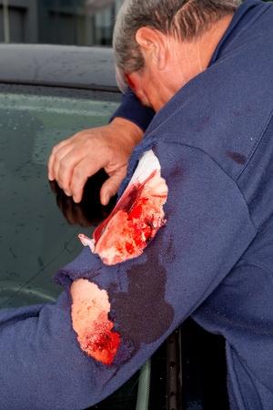 herida: Herido con una herida de brazo ensangrentado