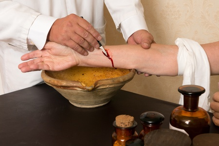 letting: Reenactment of the antique medical procedure of blood letting or bleeding a patient