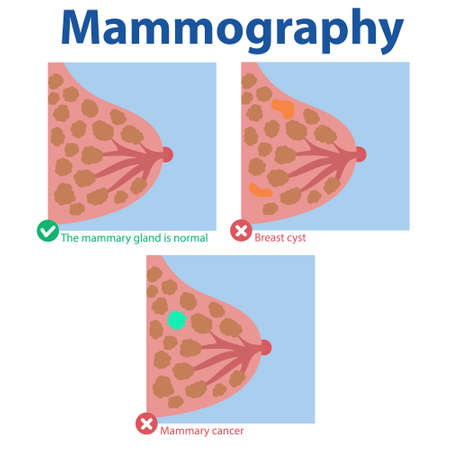 Mammography. The results of the medical examination normal breast, breast cyst, breast cancer.