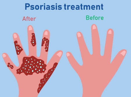 Stages of psoriasis formation. Treatment of psoriasis before and after.