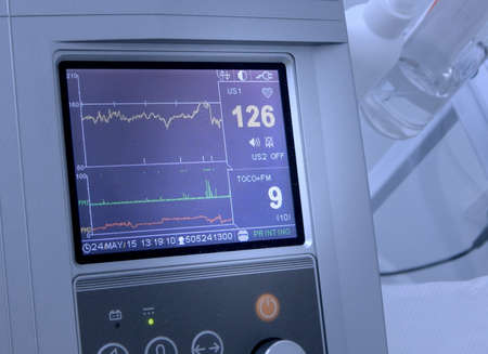 gestation: Cardiotocograph display the fetal heart rate