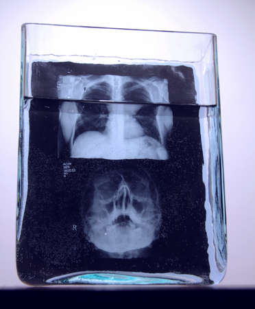 rib cage: X-ray film of human skull and rib cage after medical analysis